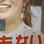 """【最新画像】安西ひろこ(40)の""""激変ぶり""""に恐怖の声「マイケル・ジャクソンみたい」"""